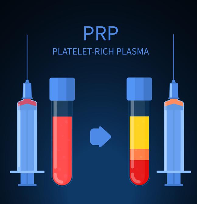 יתרונות וחסרונות של הזרקות PRP